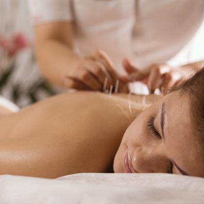 Brisbane Chiropractor Dry Needling & Western Acupuncture